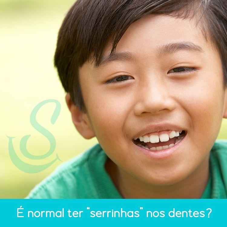 É normal ter serrinhas nos dentes