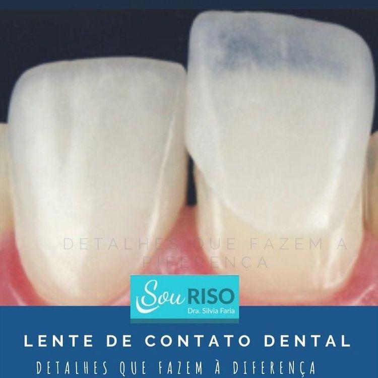 Lente de contato dental desenvolve estética do sorriso