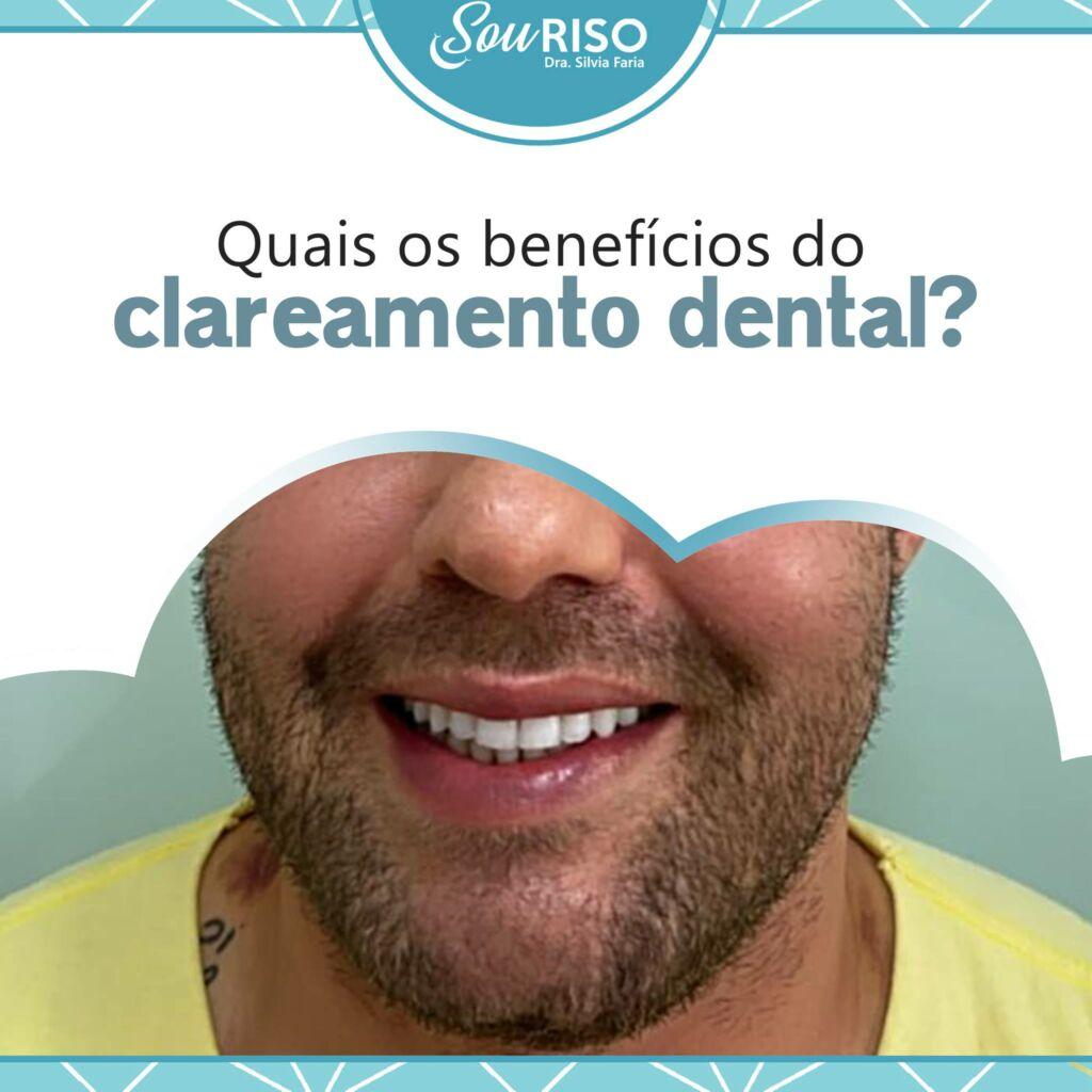 Quais os benefícios do clareamento dental